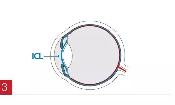 Korrektur Fehlsichtigkeit nach OP implantierbare Kontaktlinsen in den MVZ DerArzt Augenzentren