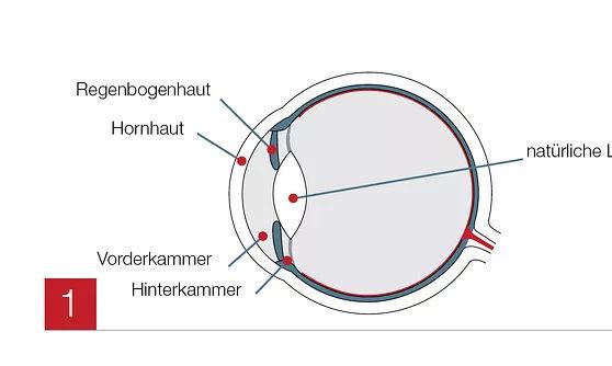 Vorbereitung des Auges für OP implantierbare Kontaktlinsen in den MVZ DerArzt Augenzentren